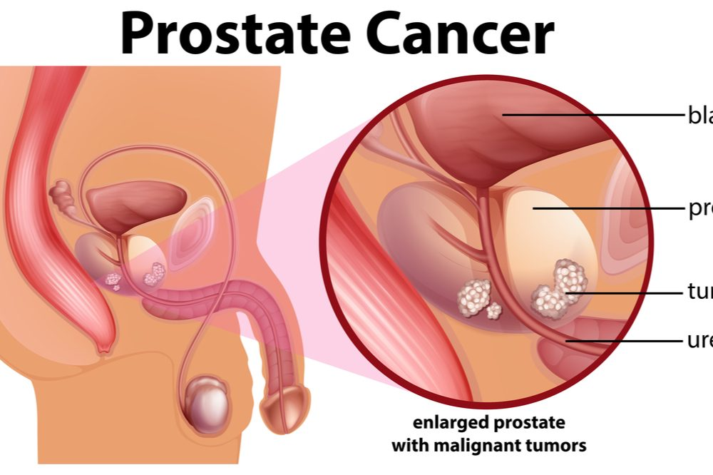diagram of prostate cancer to educate prostate cancer patient
