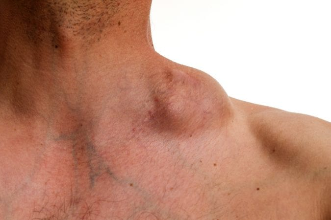 Hodgkin tumor on neck