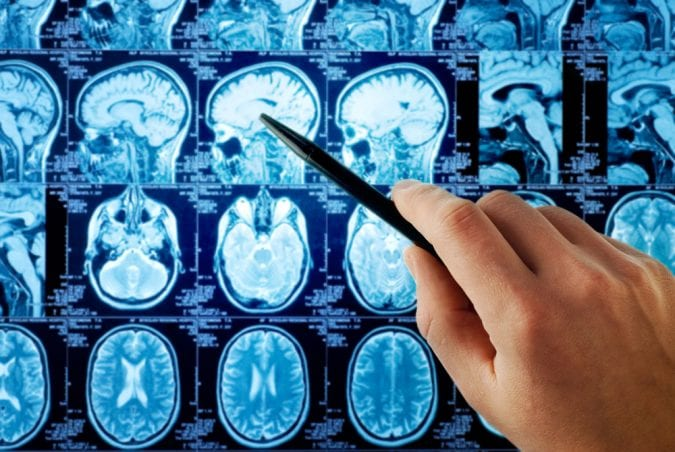 MRI scan showing brain tumor