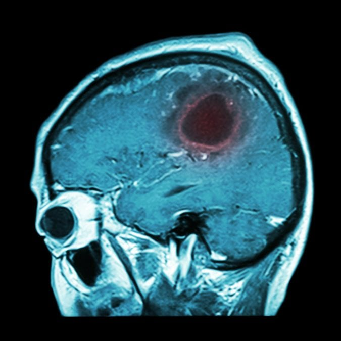 MRI showing brain tumor