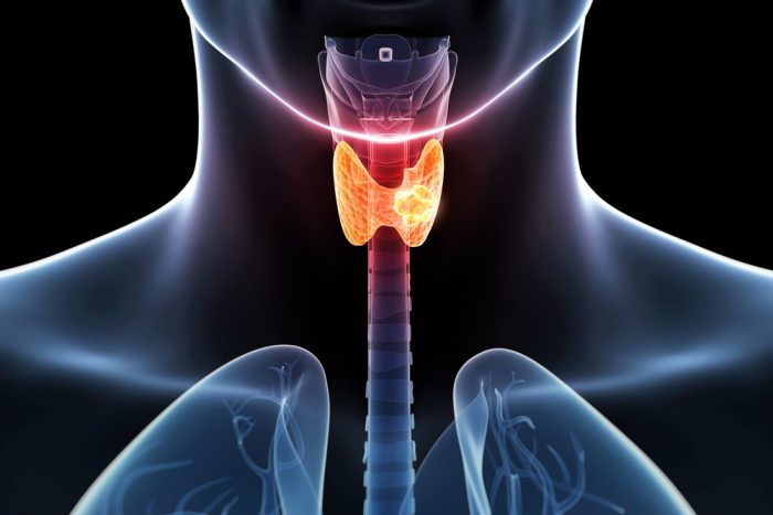 stage iv throat cancer