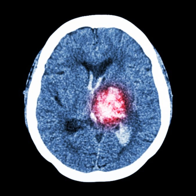Hemmorhage on MRI scan
