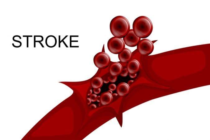 hemorrhage from blood vessel