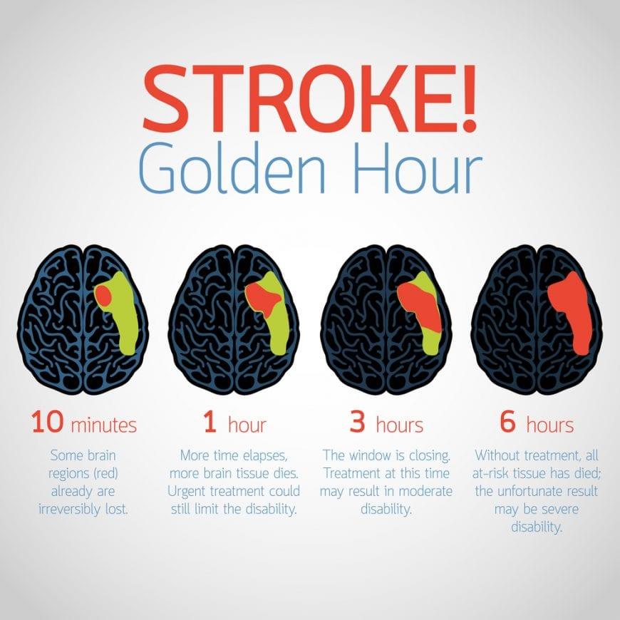 Golden Hour For Stroke Design, brain hemorrhage