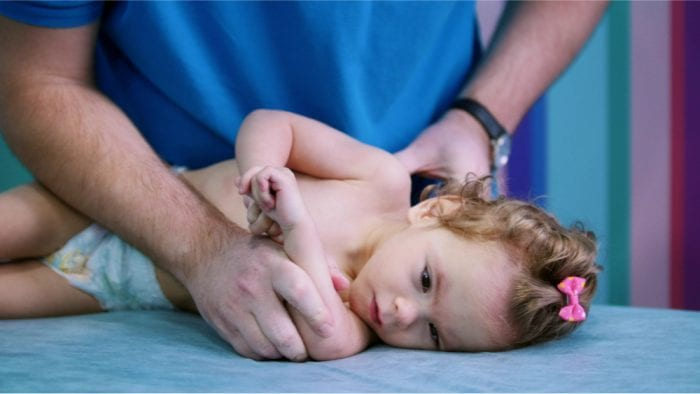 baby with cerebral palsy