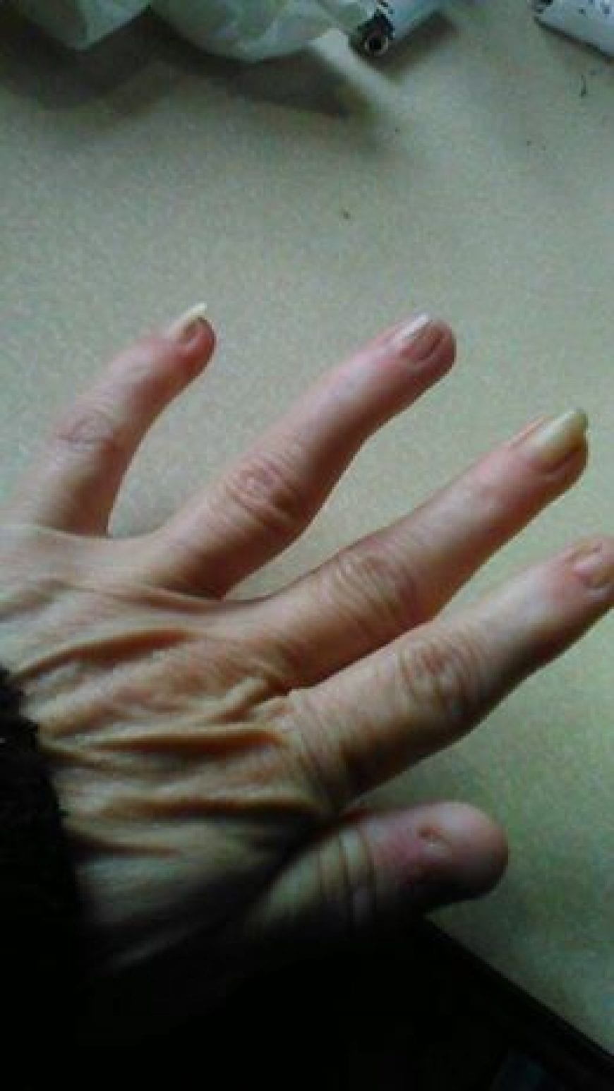 Denise: Nail Patella Syndrome | RxLeaf