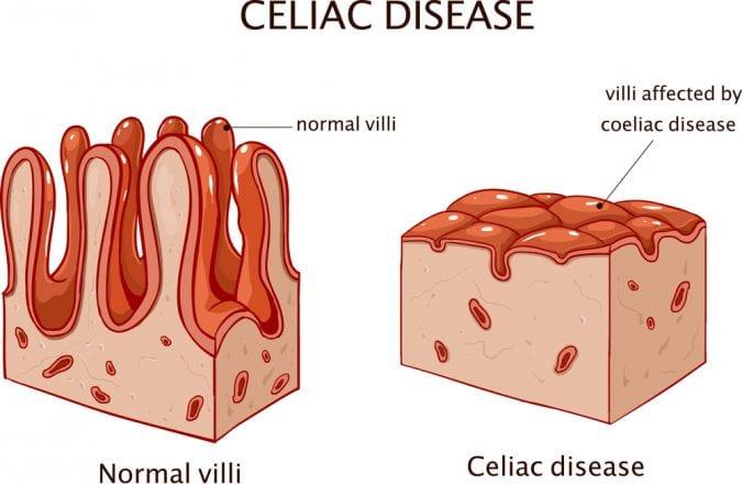 Animation showing normal gut villi versus celiac