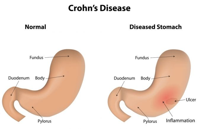Animation showing healthy stomach versus Crohn's disease