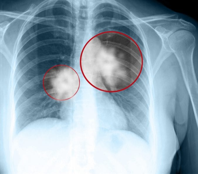 Xray showing 2 masses in lungs