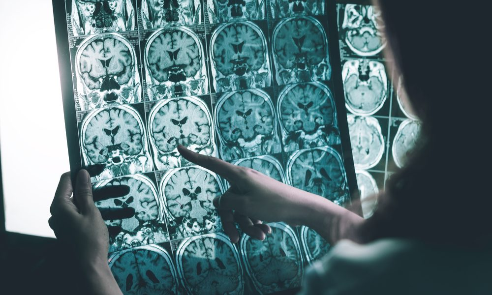 how to prevent dementia represented by MRI scans being examined by physician