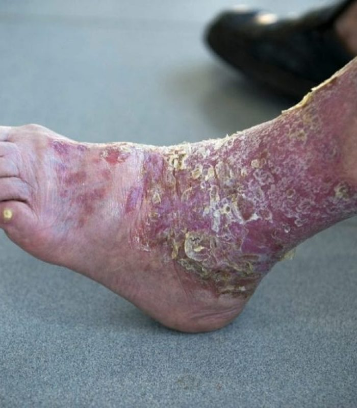Can Psoriasis Be Helped by Cannabis?