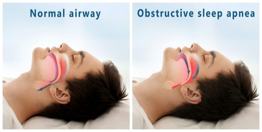 Animation comparing normal versus obstructive sleeping