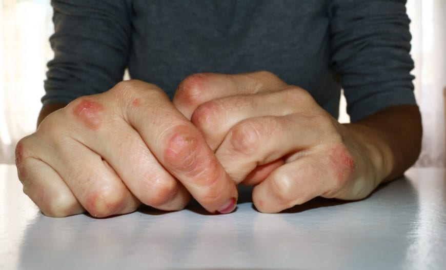 Psoriasis Outbreak on the Fingers