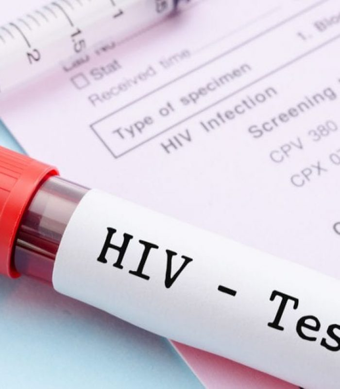 Regular Cannabis Use Reduces HIV Viral Load in PreClinical Trials