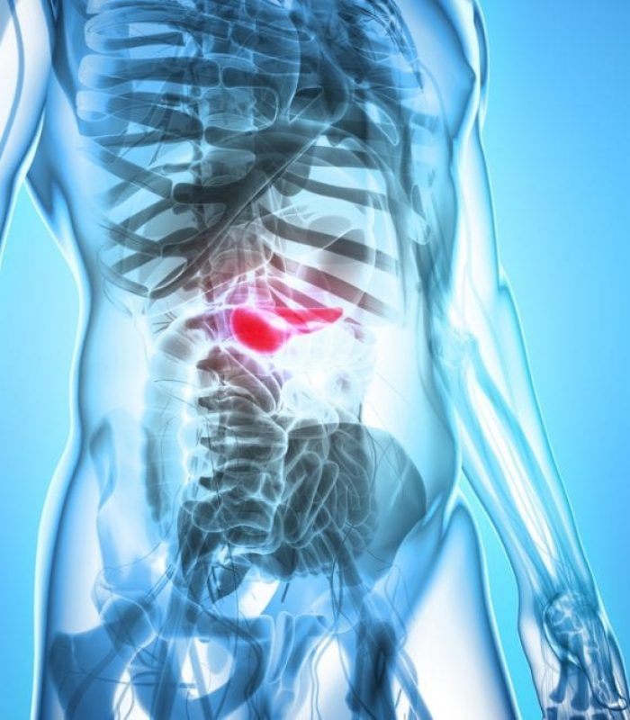 Cannabis Kills Pancreatic Cancer Cells in the Lab