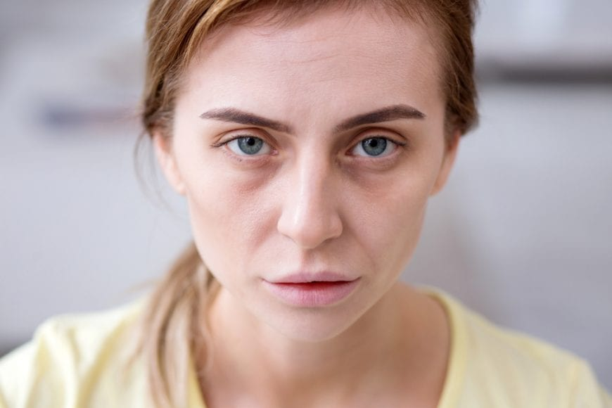 anorexic woman looking into the camera exhausted and unhealthy