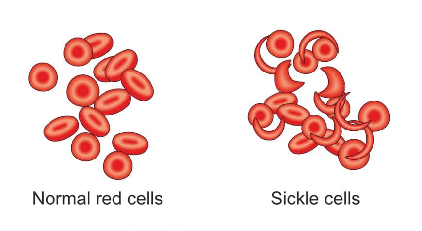 Normal Red blood cell versus sickle cell anemia