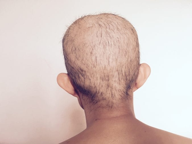 Balding from Chemo Treatment chemotherapy, cannabis for cancer,