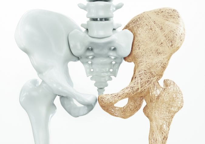 Osteoporosis in hip bone