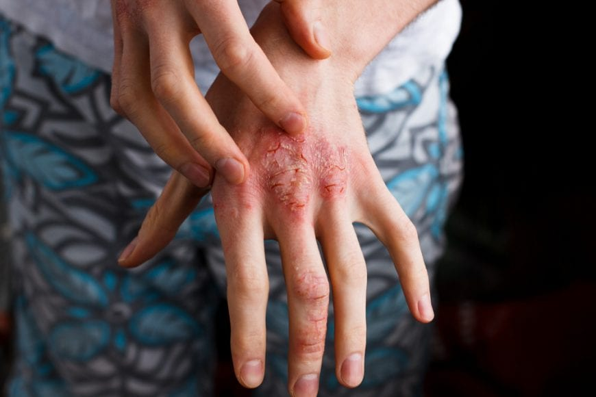 Young woman scratching psoriasis on her hand