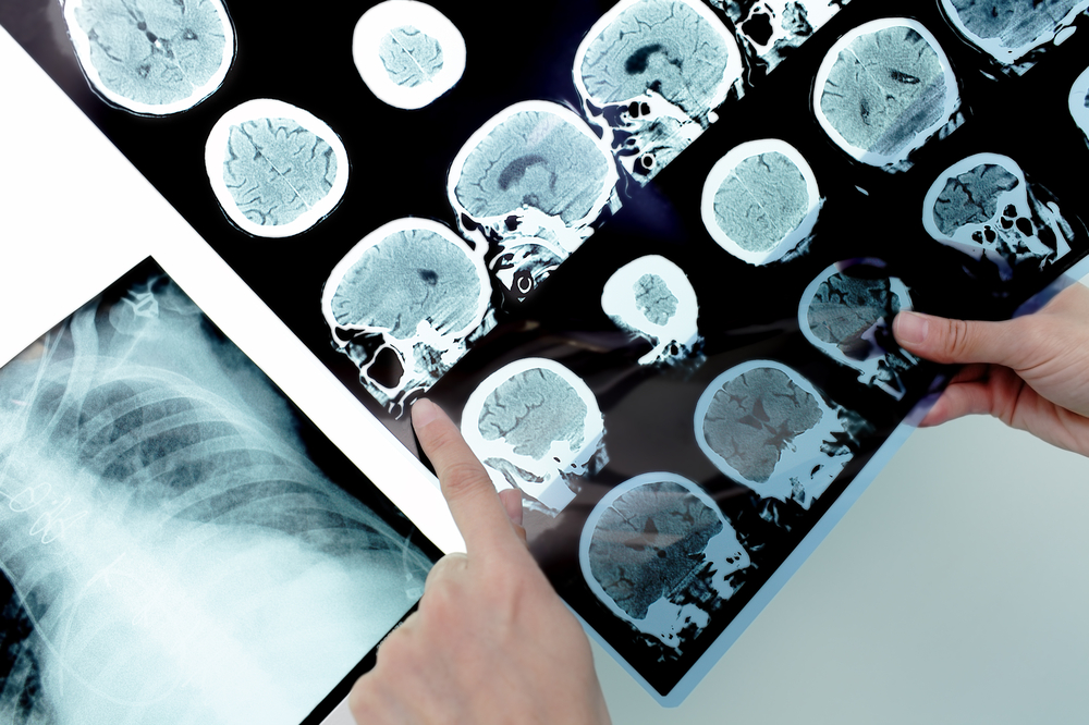 cannabis prevents metastasis  represented by scan images