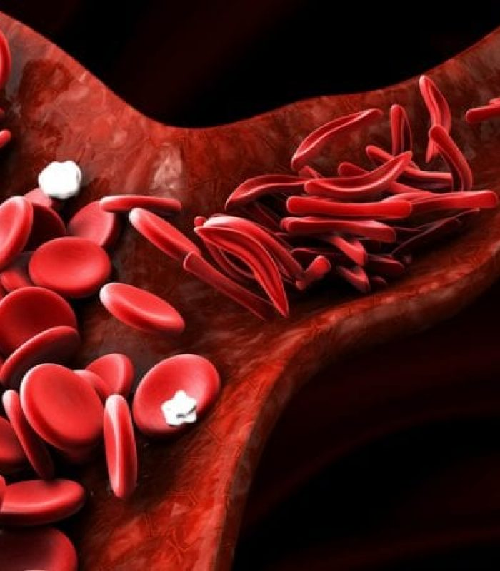 Will Cannabis Help Sickle Cell Anemia Pain and Inflammation?