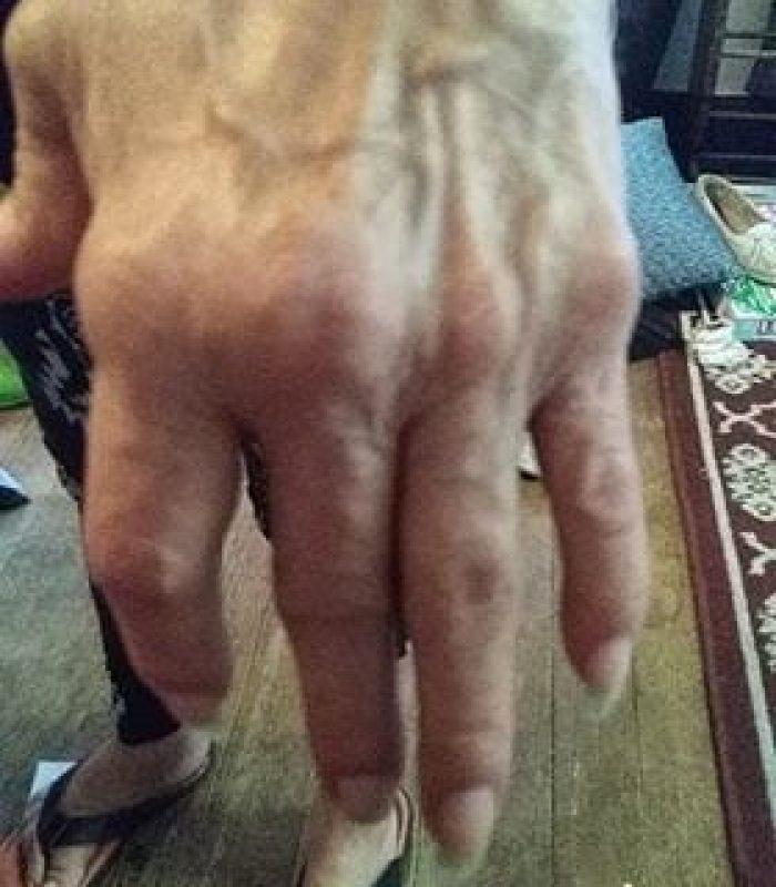 Decades of Rheumatoid Arthritis Still No Prescriptions