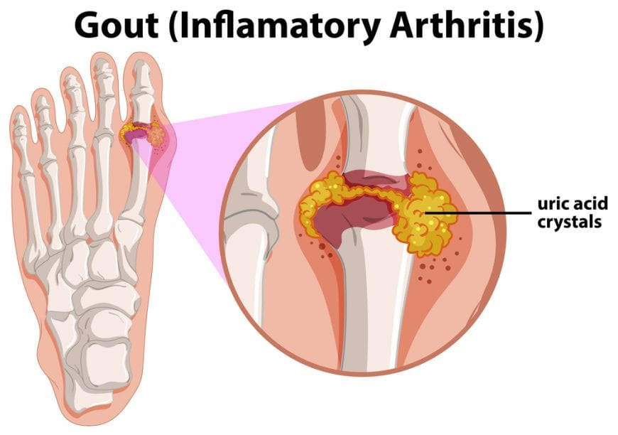 Gout animation showing crystal deposits in joint