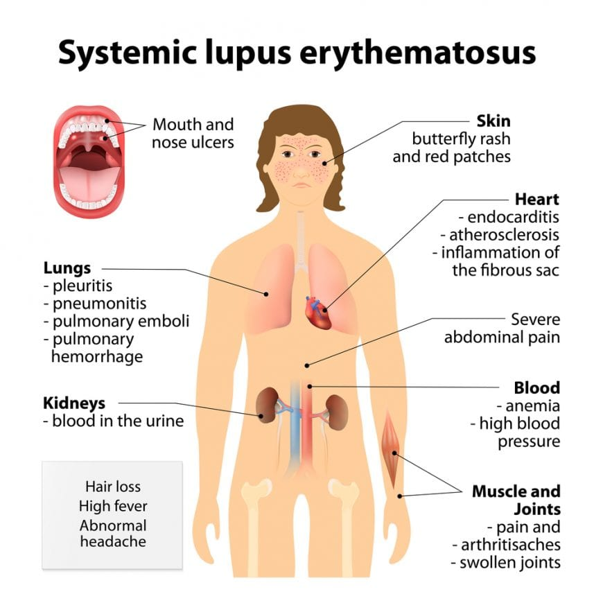 Animation showing organs affected by lupus