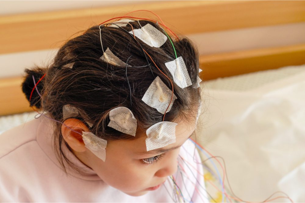 CB3 receptor represented by young female child set up for EEG test to represent medicine of THC in cannabis
