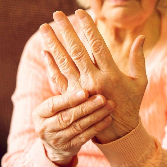 arthritis pain, pain, CBD, THC, cannabis, pain relief, arthritis, pain, medicine, joint pain