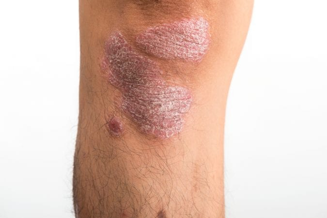 Psoriasis on the knee