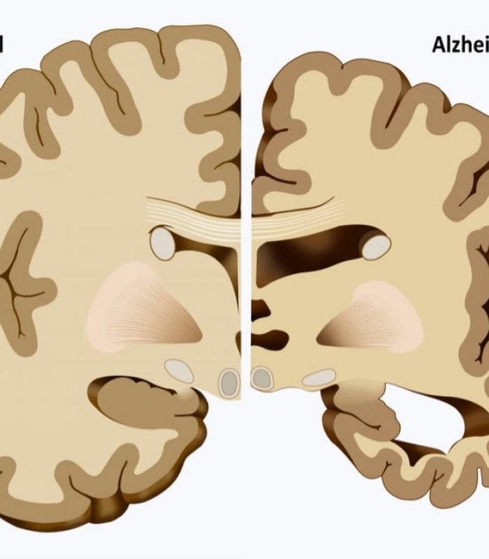 Does Alzheimer's Start with Damage to Endocannabinoid System?