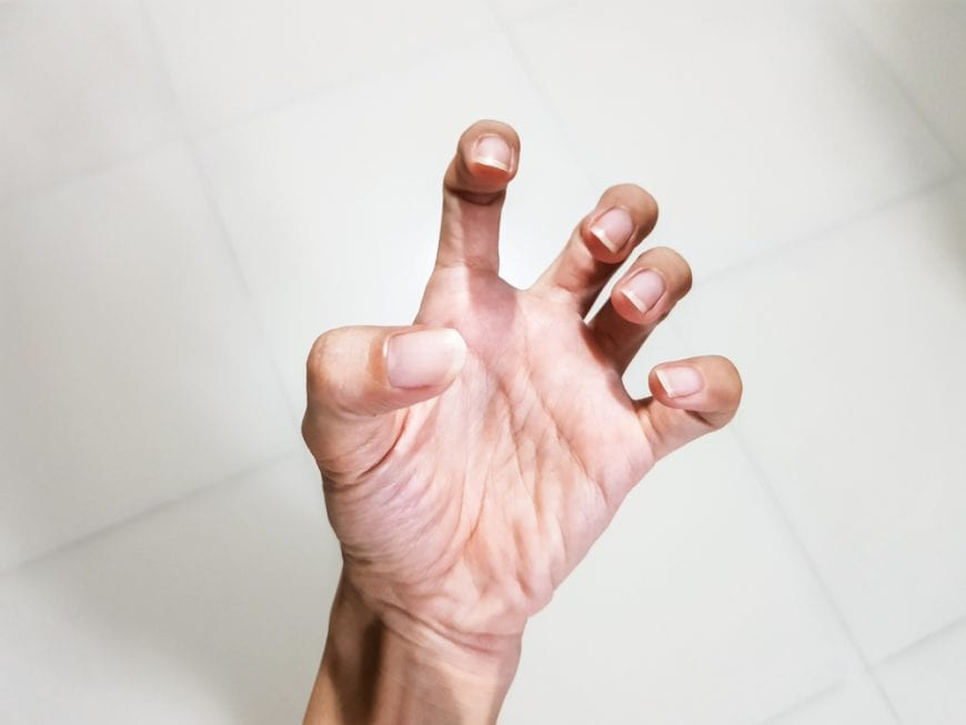 Muscle Spasticity in the hand