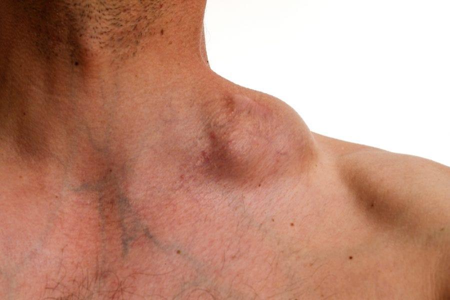 Tumor on neck
