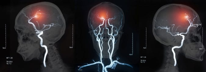 cannabis, stroke, THC, CBD, cannabinoids, brain injury, MRIs, brain health, legalization, medical cannabis