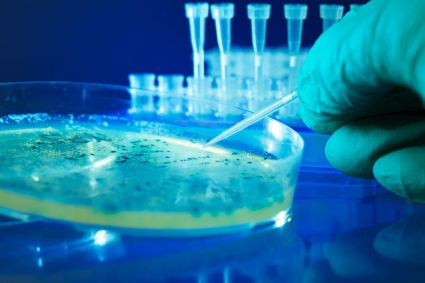 dangerous bacteria in petri dish