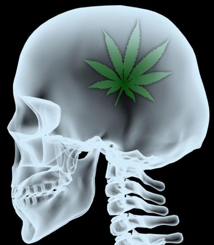 Can Cannabis Dial Down Brain Inflammation?