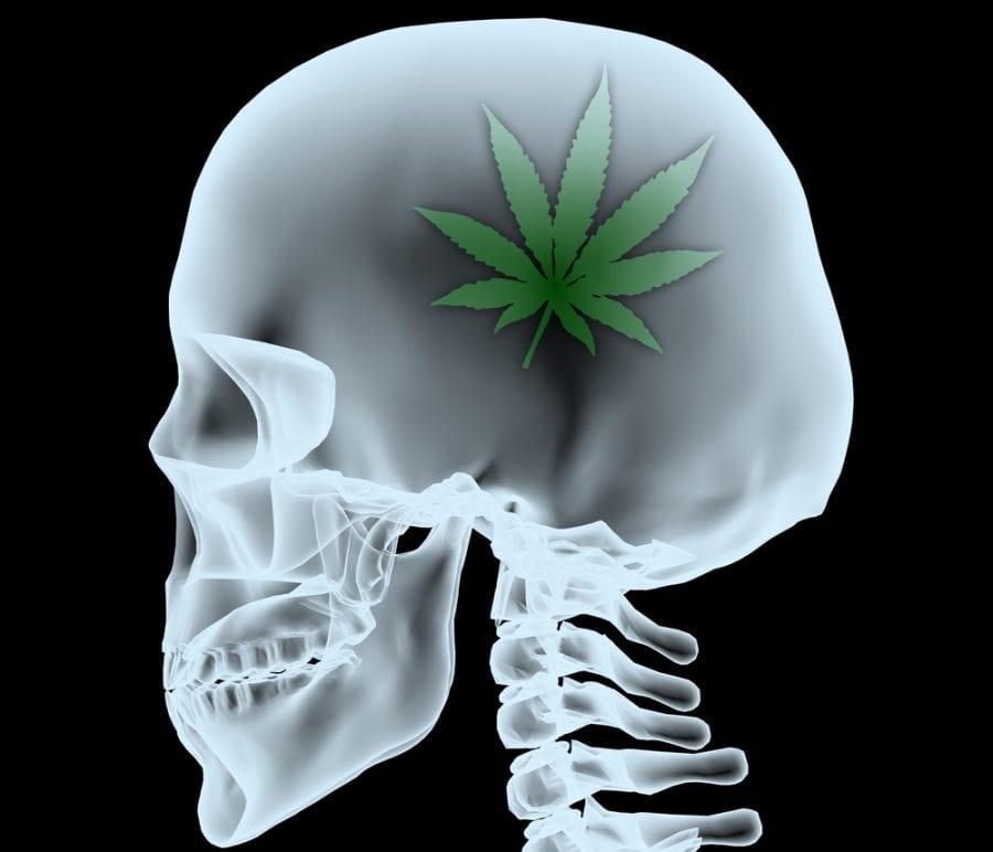 CB1, CB2, cannabis, cannabinoids, endocannabinoid system, neurogenerative disease, neuroprotectant, brain disease, inflammation, anti-inflammatory