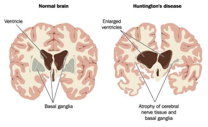 cannabis, ALS, Huntington's, Alzheimer's, neurological disease, CBD, THC, cannabinoids, medical cannabis, brain