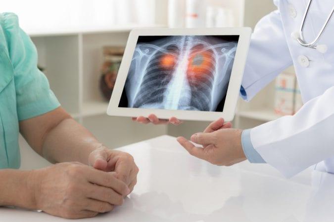 cannabis, lungs, tumours, metastasis, CBD, THC, cannabinoids, chemotherapy, nausea, pain