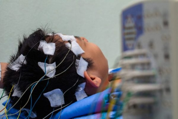 boy having an EEG with electrodes taped to his head