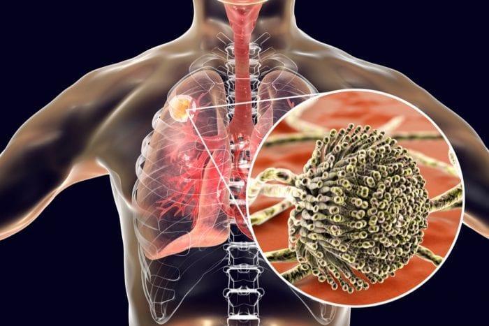 Aspergillus, mold, cannabis, medical cannabis, recreational cannabis, cannabis grows, contamination, fungus, health risks, legalization, mycotoxins