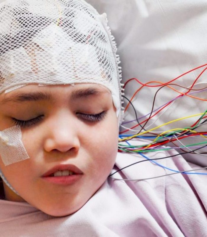 Why Cannabis Works for Seizures