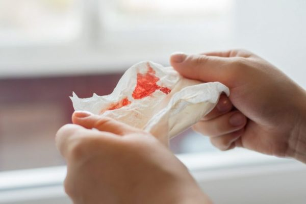 person holding bloody Kleenex after tb test coughing up blood