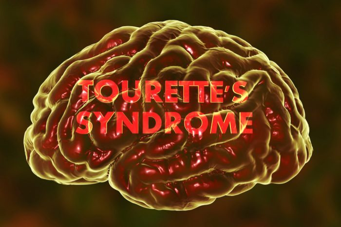 tourette's syndrome treatment, tourette syndrome, cannabis, CBD, THC, Australia, research, tics, neurological disorders, cannabinoids, medical cannabis