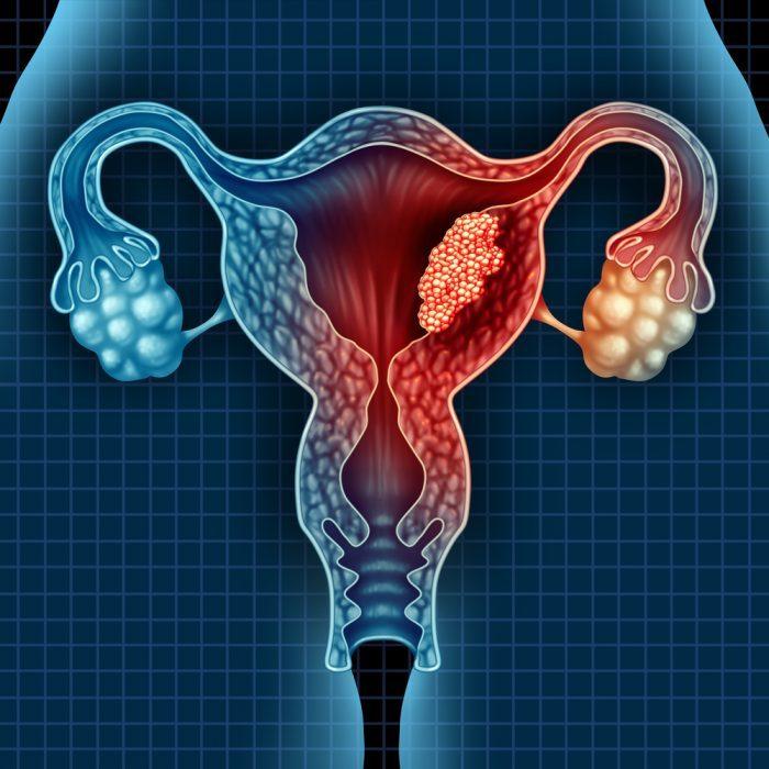 uterus, gyno, cancer, endometrial cancer, tumor, malignancy, endocannabinoid system, ECS