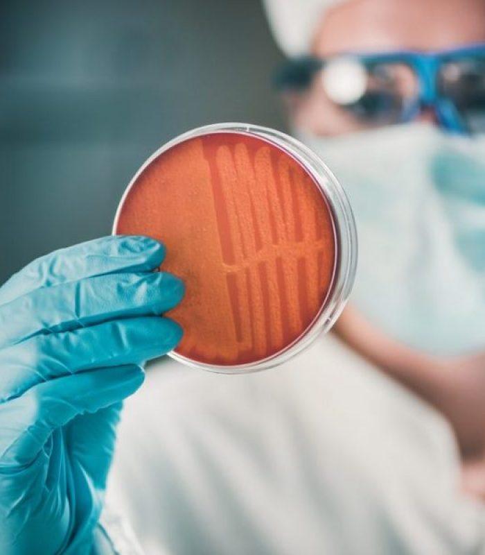 Early Stage Study Examining CBD as Antibiotic