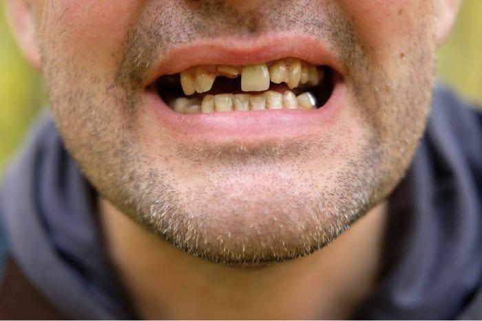 tooth loss, periodontitis, gum disease, periodontal health, dental health, oral hygiene, cannabis, smoking cannabis, health risks