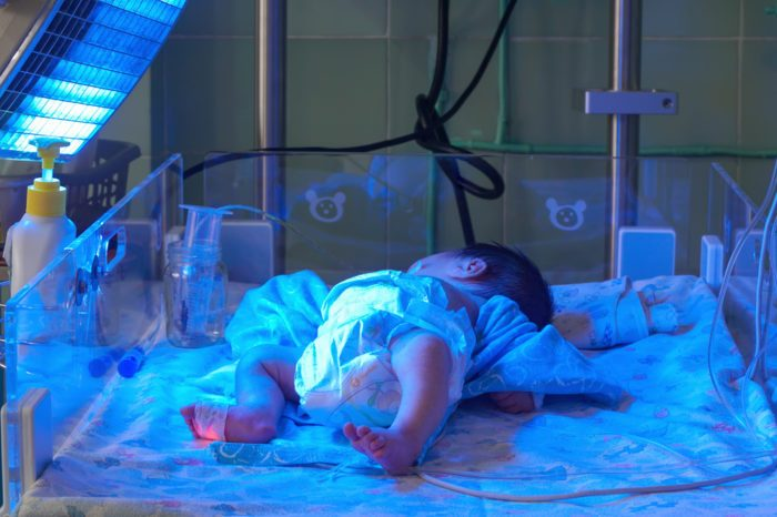 Study Investigates if Cannabinoids Help Newborn Brain Injury